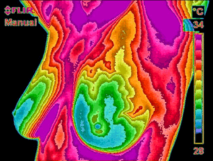 Breast Thermography at Cedar Wood Natural Health Center